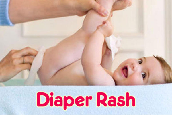 jenni-june-diaper-rash-video